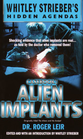 Casebook: Alien Implants Cover